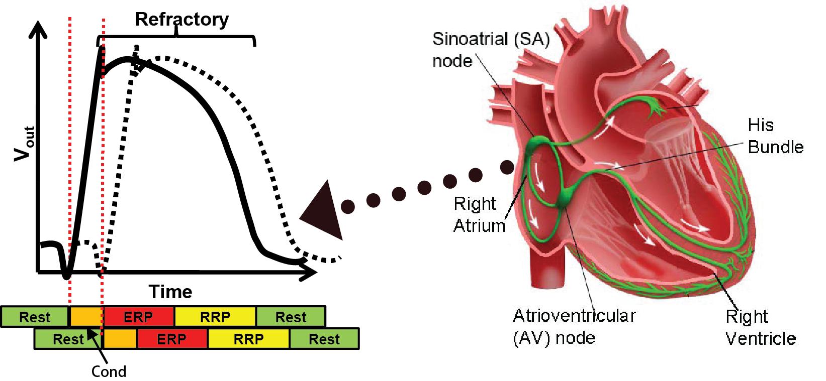 Heart Modeling - Medical CPS